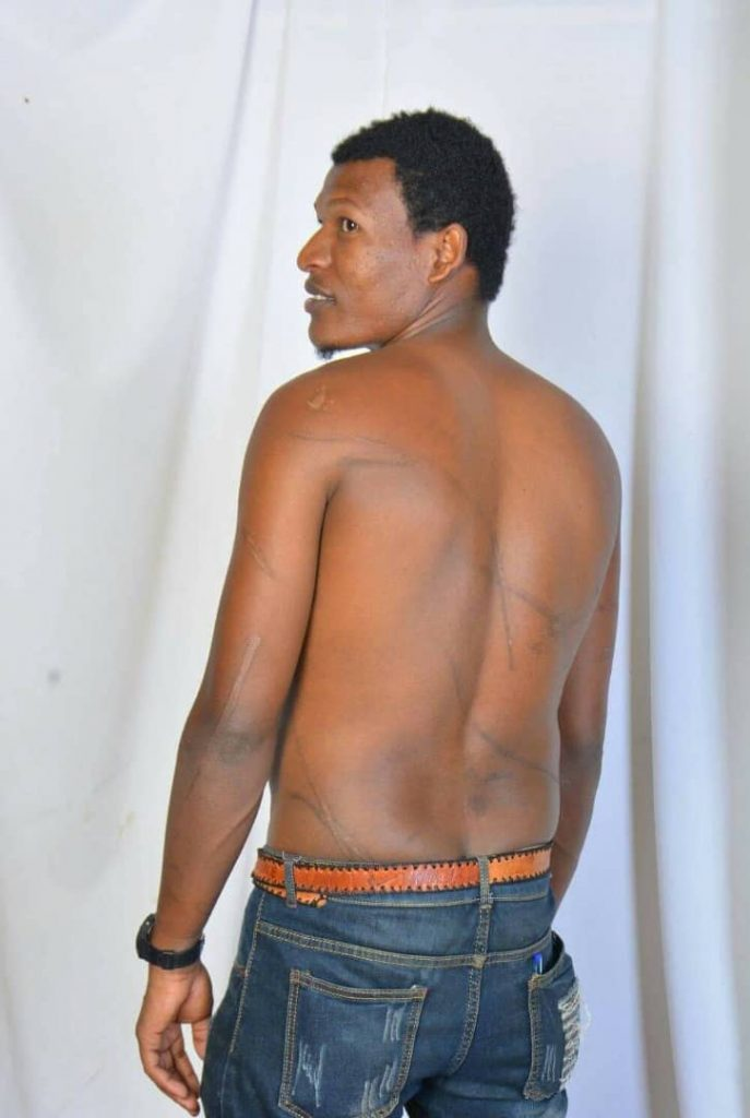 Scars on the back of Ijara Tadese, who was beaten up by security forces in detention center
